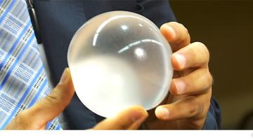 Gyomorballon a segítő társ a fogyásban
