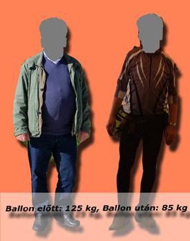 lajos_gyomorballon_tortenete